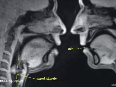 Le corps passé à l'IRM